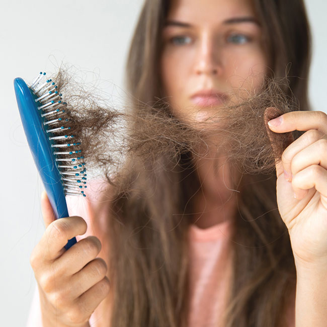 Hair Loss and Alopecia